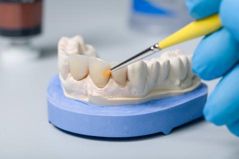 Couronnes et facettes dentaires
