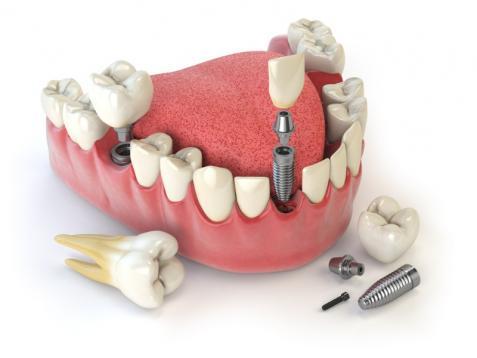 Implant en titane